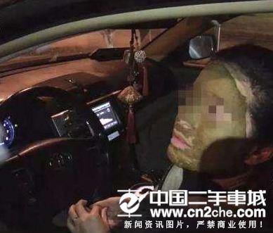 女子赶时间驾车敷面膜上班 精华液入眼发生车祸